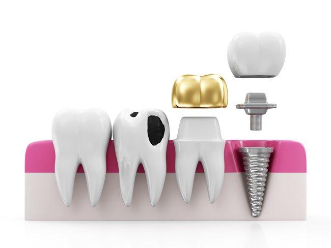 Dental Onlays